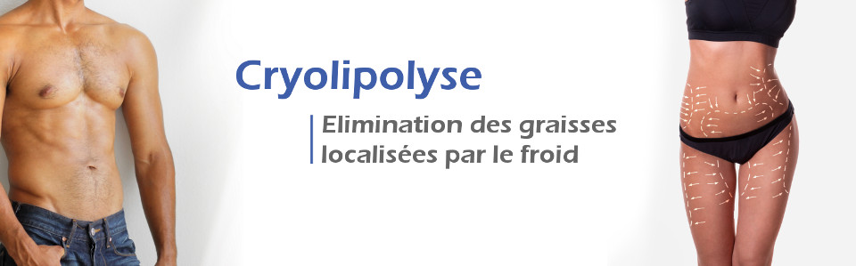 cryolipolyse-homme-et-femme-monaco-4kbAFPZ